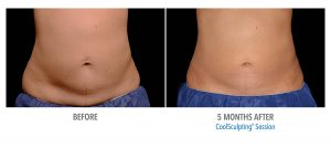 Coolsculpting Miami